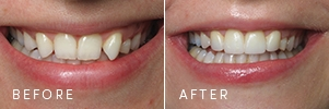 A before and after of a patient with missing lateral teeth and prominent, fang-like cuspids treated with cosmetic dentistry and new porcelain crowns.