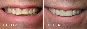 A patient with wear and discoloration on their teeth before and after porcelain restoration from cosmetic dentistry.
