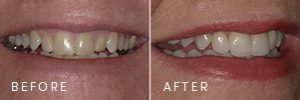 A patient before and after new porcelain crowns.