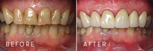 A patient with teeth discoloration before and after dentistry procedures to improve dental health.