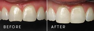 A patient with a broken edge on their teeth before and after it's repaired with cosmetic dentistry.