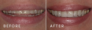 A patient with flat tooth edges and a worn smile before and after cosmetic dentistry restored the length and curve of the smile.