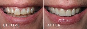 A patient's mouth before and after new porcelain veneers.