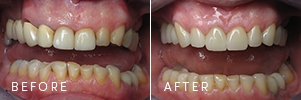 A patient with old, failing fillings before and after restorative dentistry improving gum architecture, tooth alignment, and chewing function.
