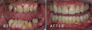 A patient before and after full dental reconstruction, including sedation dentistry, grafting, implants, and crowns.