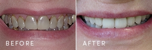 A patient with failing dental restorations and missing teeth before and after cosmetic dentistry restoration.