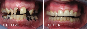 A patient before and after a complex dental rehabilitation journey.