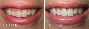 A patient with uneven gum architecture before and after porcelain veneers.