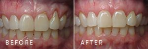 A patient with gum recession before and after periodontal and gum health improvements.