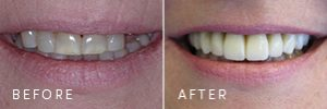 A patient with gum disease before and after dental implants.