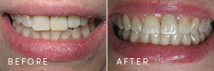 A patient who lost a front tooth, before and after dental implants.