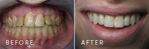 A patient before and after dental implants were restored.