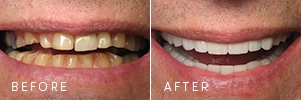 A patient with broken-down dentistry before and after cosmetic dentistry, including porcelain crowns and bridges.
